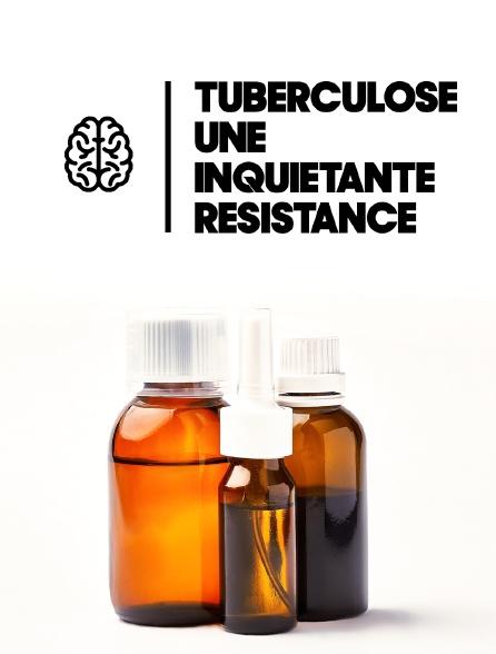 Tuberculose, une inquiétante résistance
