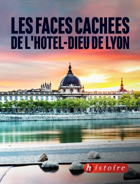 Histoire - Les faces cachées de l'Hôtel-Dieu de Lyon
