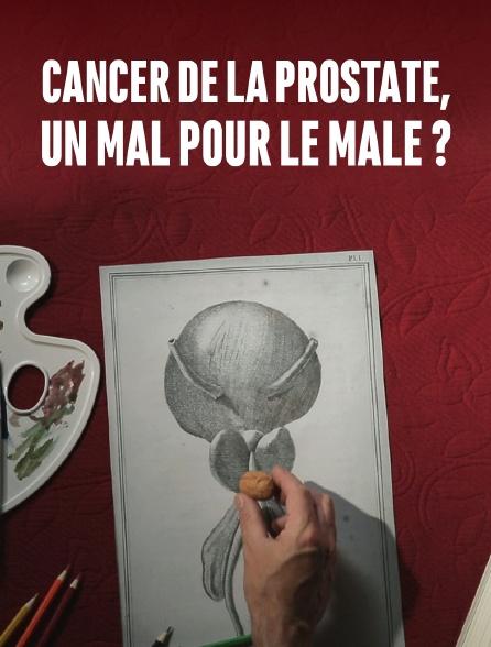 Cancer de la prostate, faut-il opérer à tout prix ?